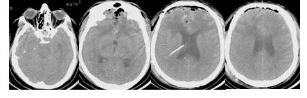 КТ-исследование головного мозга через 6 часов после операции.