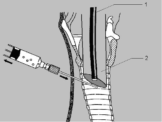 Рис. 2 1-фиброскоп2-интубационная трубка в роли внутреннего каркаса трахеи