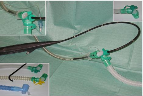 Рис.3 Коннекторы с эластичной мембранойНа время выполнения операции у больных использовался специальный коннектор, имеющий эластичную диафрагму, позволяющую вводить бронхоскоп не прекращая ИВЛ.